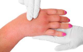 Эффективность массажа после мастэктомии при лимфостазе руки