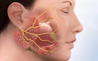 Массажная техника при неврите лицевого нерва