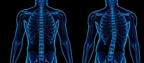 Ударно-волновая терапия сколиоза