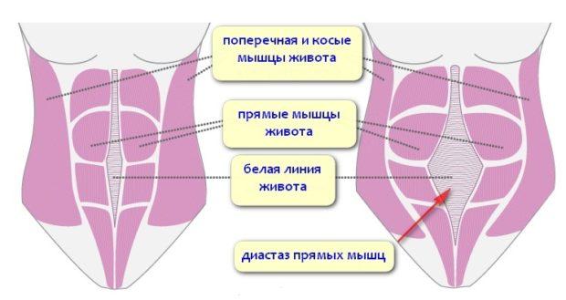 Мышцы живота до и после родов, диастаз прямых мышц живота
