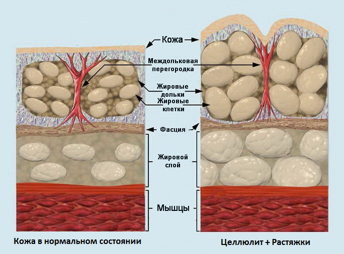 cellyulit-i-rastyazhki