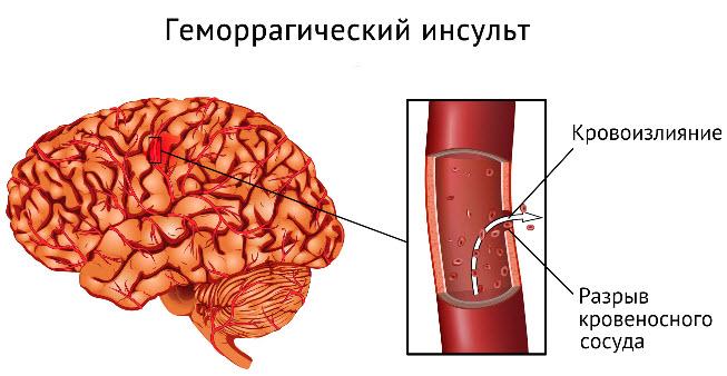 gemorragicheskij-insult