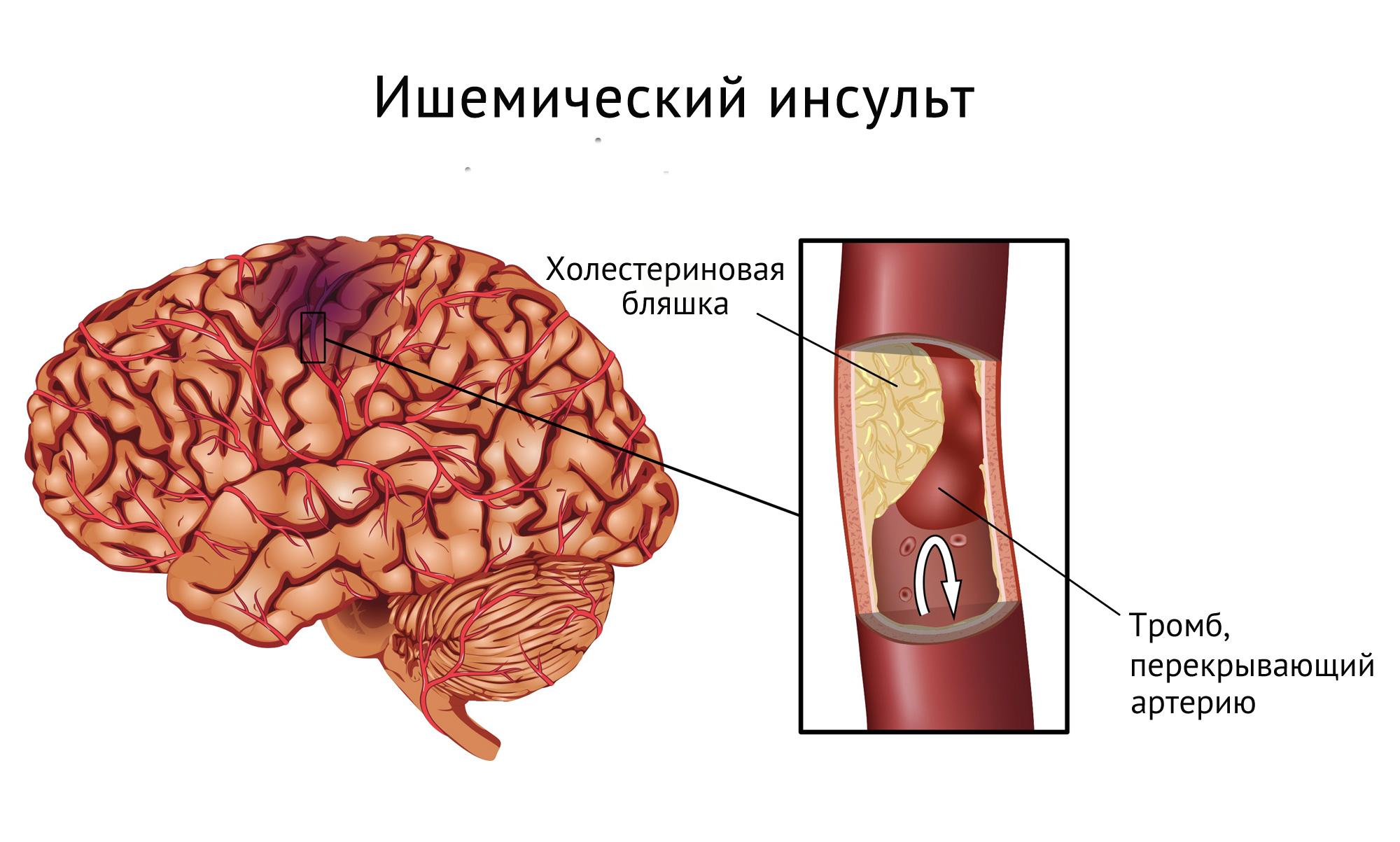 ishemicheskij-insult