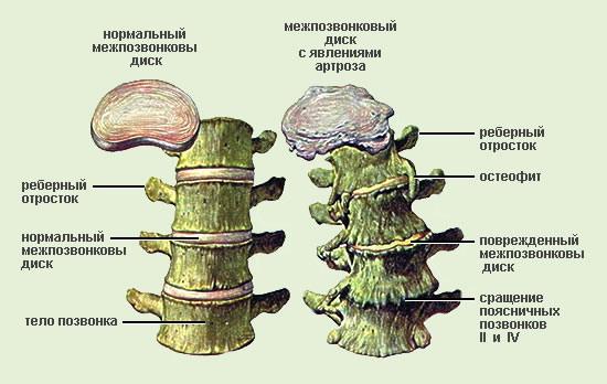 Симптомы остеоартрита - разрушение дисков