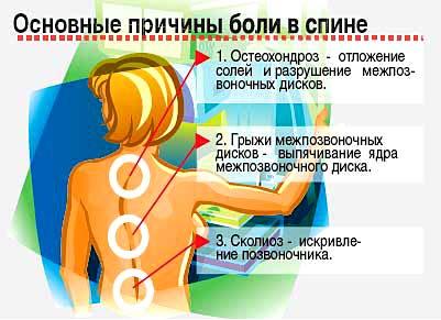 Основные причины боли в спине