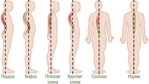 Заболевания спины и позвоночника