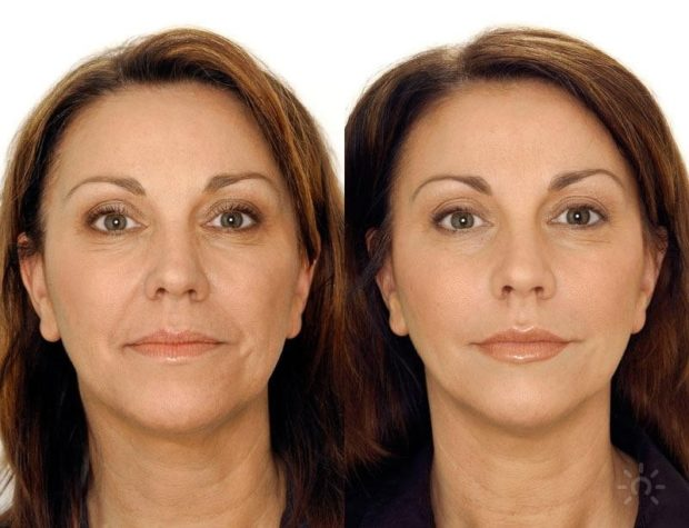 До и после йоги для лица