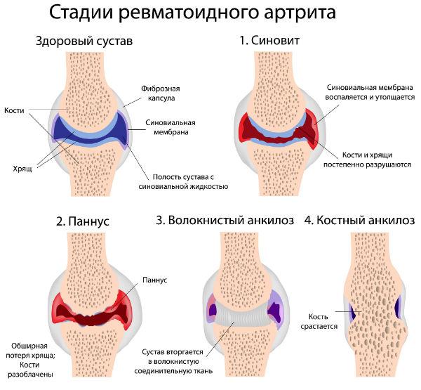 Ревматоидный артрит - стадии