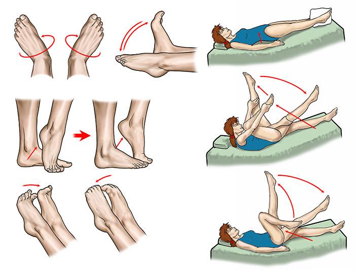 Тренировка ног при варикозе