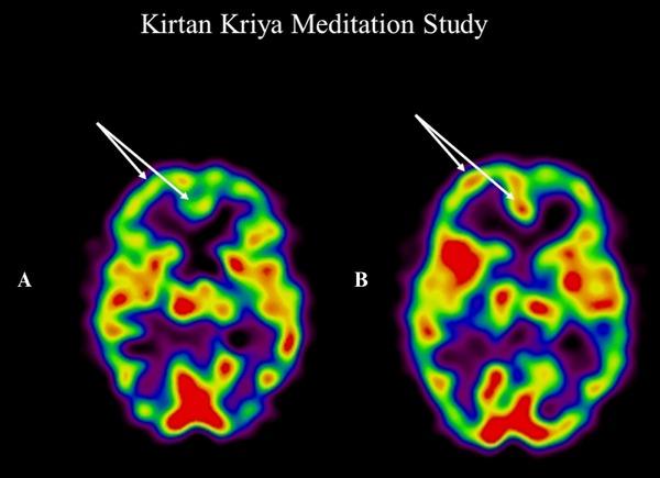 Крийя Киртан - результат улучшение