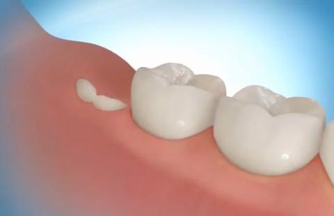 Вырастить новые зубы возможно