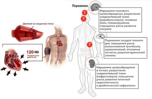 Гипертония опасность