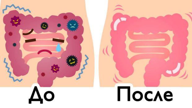 До и после очистки кишечника