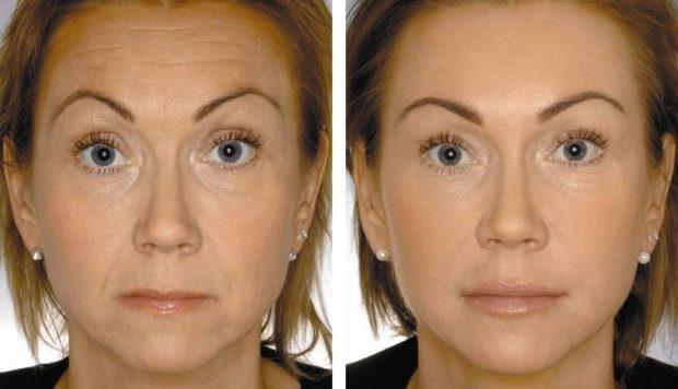 Эффект на лице