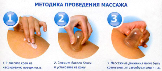Схема установки банок