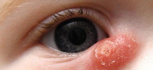 Всопаление слезного канала