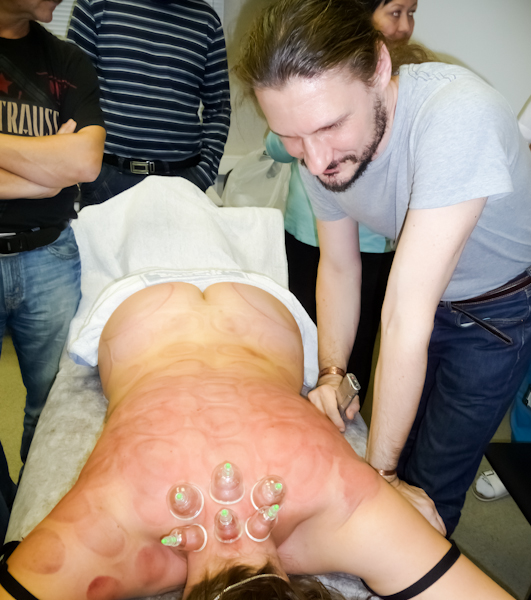 Статический массаж
