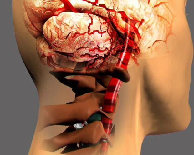 Шейный остеохондроз вакуумный массаж