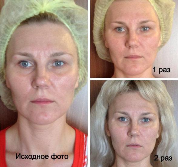 Эффект глубокотканного массажа