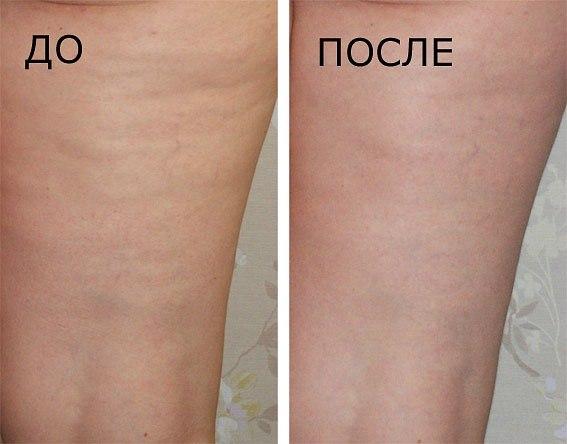 Эффект от массажа