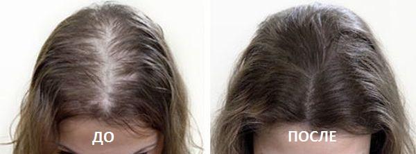 Эффект массажа головы