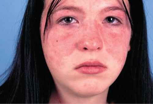 Покраснение лица после массажа