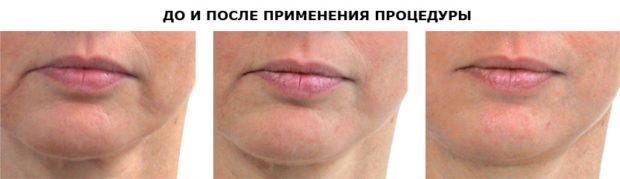 До и после аппаратного массажа