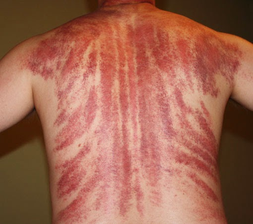 Синяки после массажа