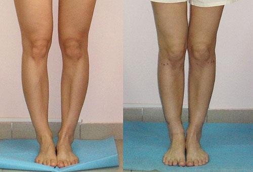 До и после лечения массажем