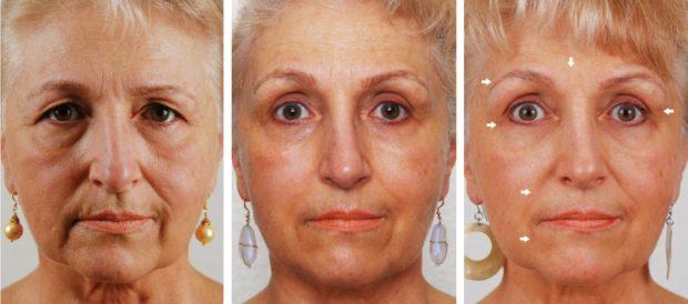 Эффект от массажа глаз