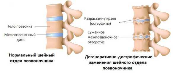 Состояние позвонков при остеохондрозе
