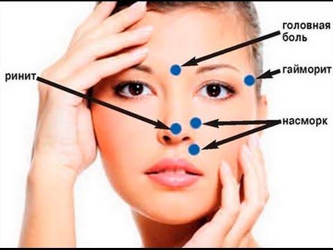Заболевания носовых пазух