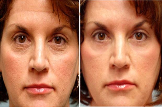 Миофасциальный массаж до и после