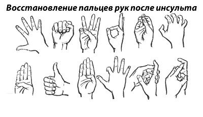 Разработка пальцев