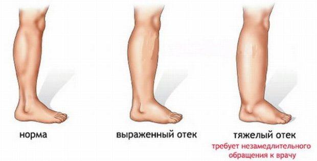 Отечность ног - противопоказание