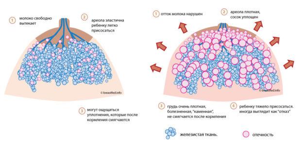 Лактостаз или каменная грудь