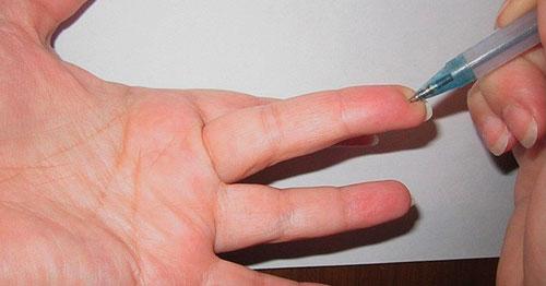 Точка на пальцах от повышеного АД