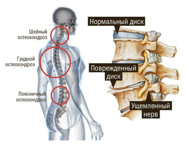 Остеохондроз позвоночника и шеи