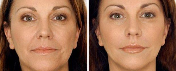 До и после массажа шиацу