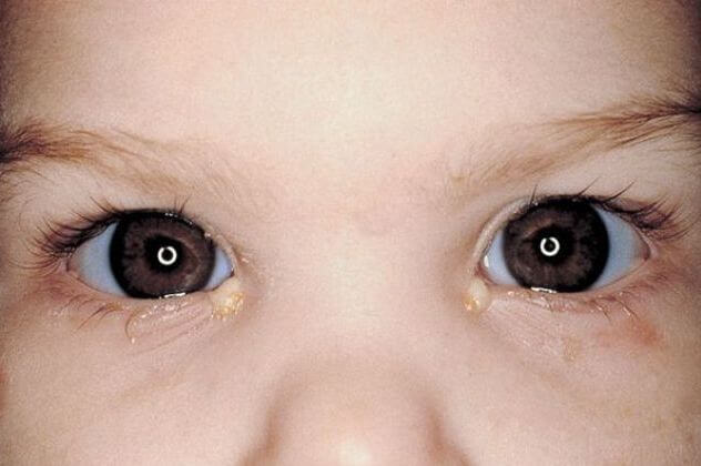 Инфекция глаз - противопоказание к массажу