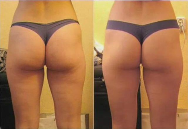 Моделирующий массаж: до и после