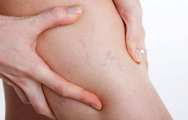Варикоз на ногах у беременных