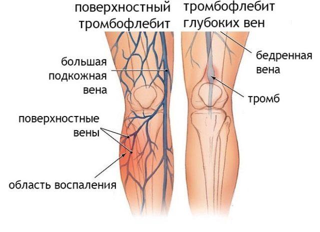 Тромбофлебит - противопоказание к лимфодренажному массажу