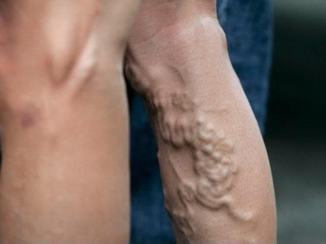 Варикоз - противопоказание к вакуумному массажу