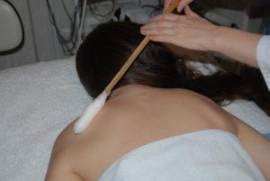 Крио массаж при бронхите