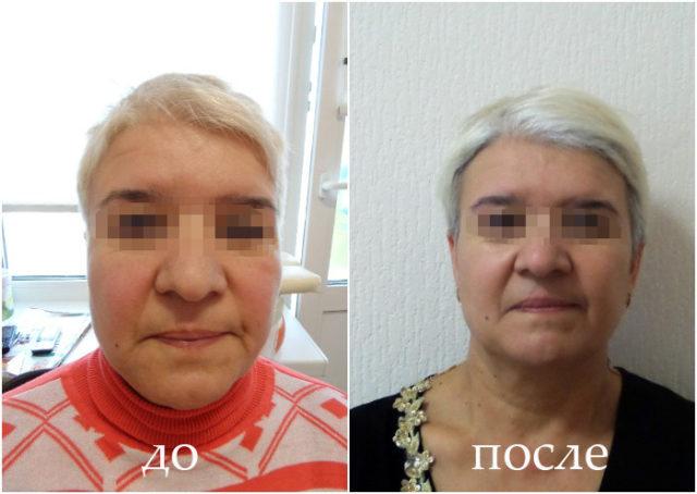 Результат остеопатического массажа
