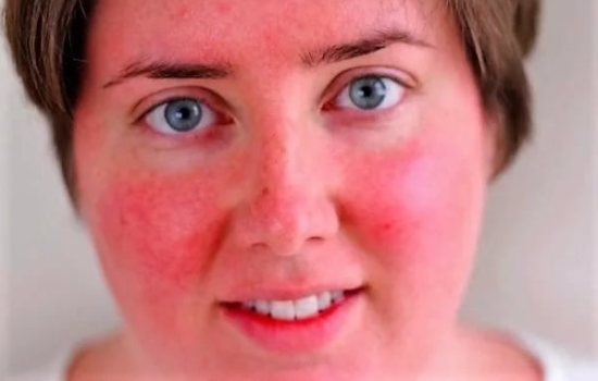 Покраснение лица после массажа Жаке