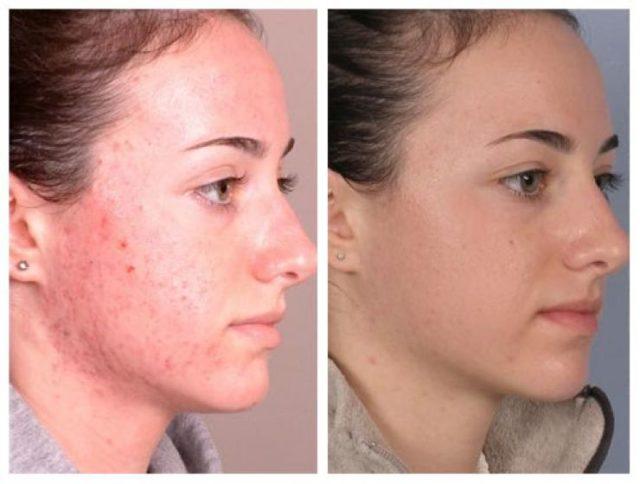 Очистка лица после массажа Жаке