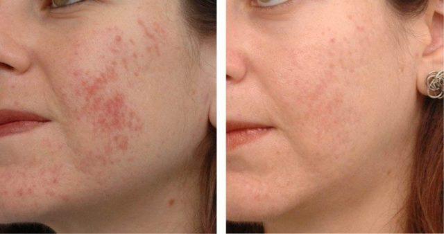 Воспаление на лице до и после массажа Жаке