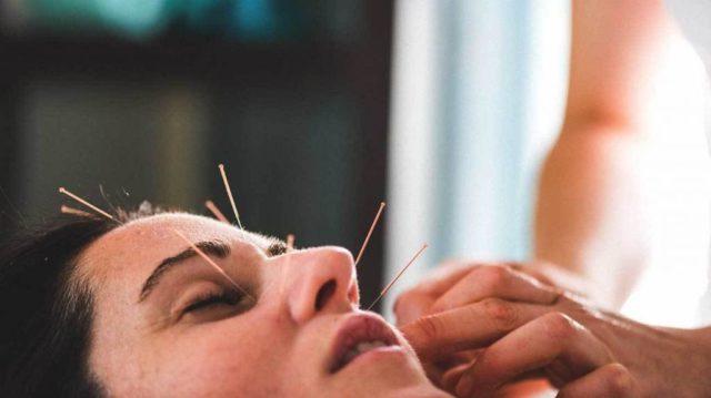 Точечный массаж лица с иглоукалыванием
